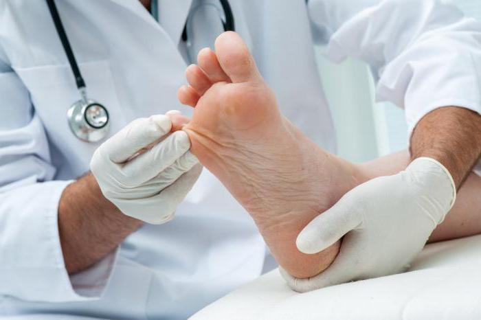 Эффективное лекарство от грибка ногтей на ногах отзывы